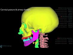Osteodistrazione 3D