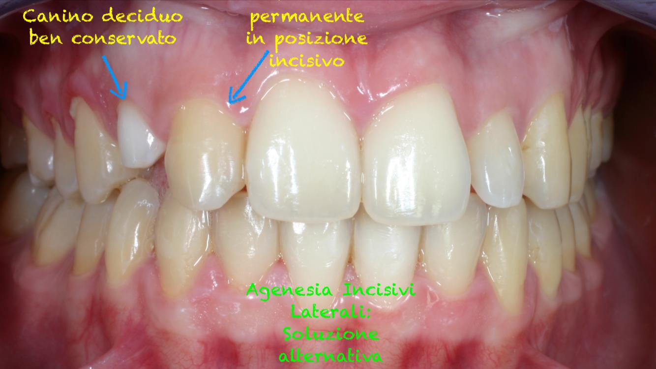 agenesia di tutti i denti