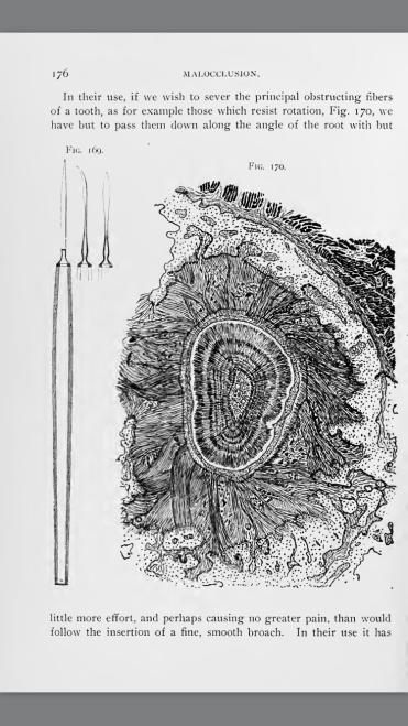 Stabilità: le fibre parodontali